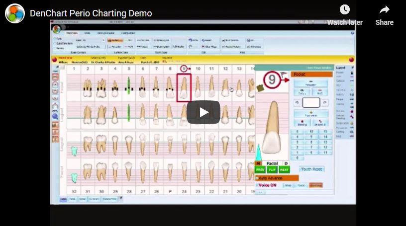 [VIDEO] Voice Perio Charting